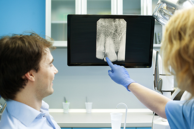 Dentist showing a patient his digital x-ray in Chandler, AZ.
